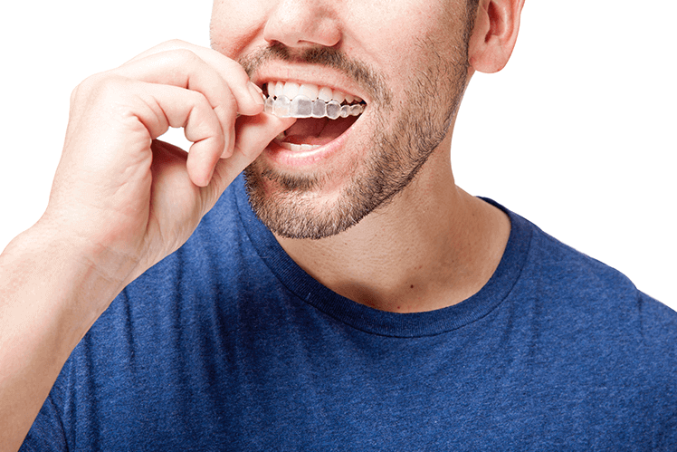 man inserting invisalign aligners on his teeth