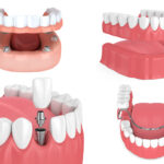 Dental implants vs. dentures as tooth replacement options in Wolcott, CT