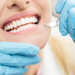 Closeup of a woman's smile after receiving a deep cleaning in Wolcott, CT